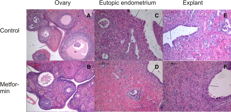 Metformin regresses endometriotic implants in rats by improving implant levels of superoxide - Metaforen tissus ...