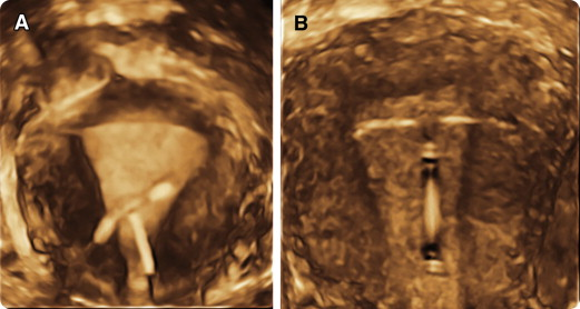Consider Ultrasound First For Imaging The Female Pelvis