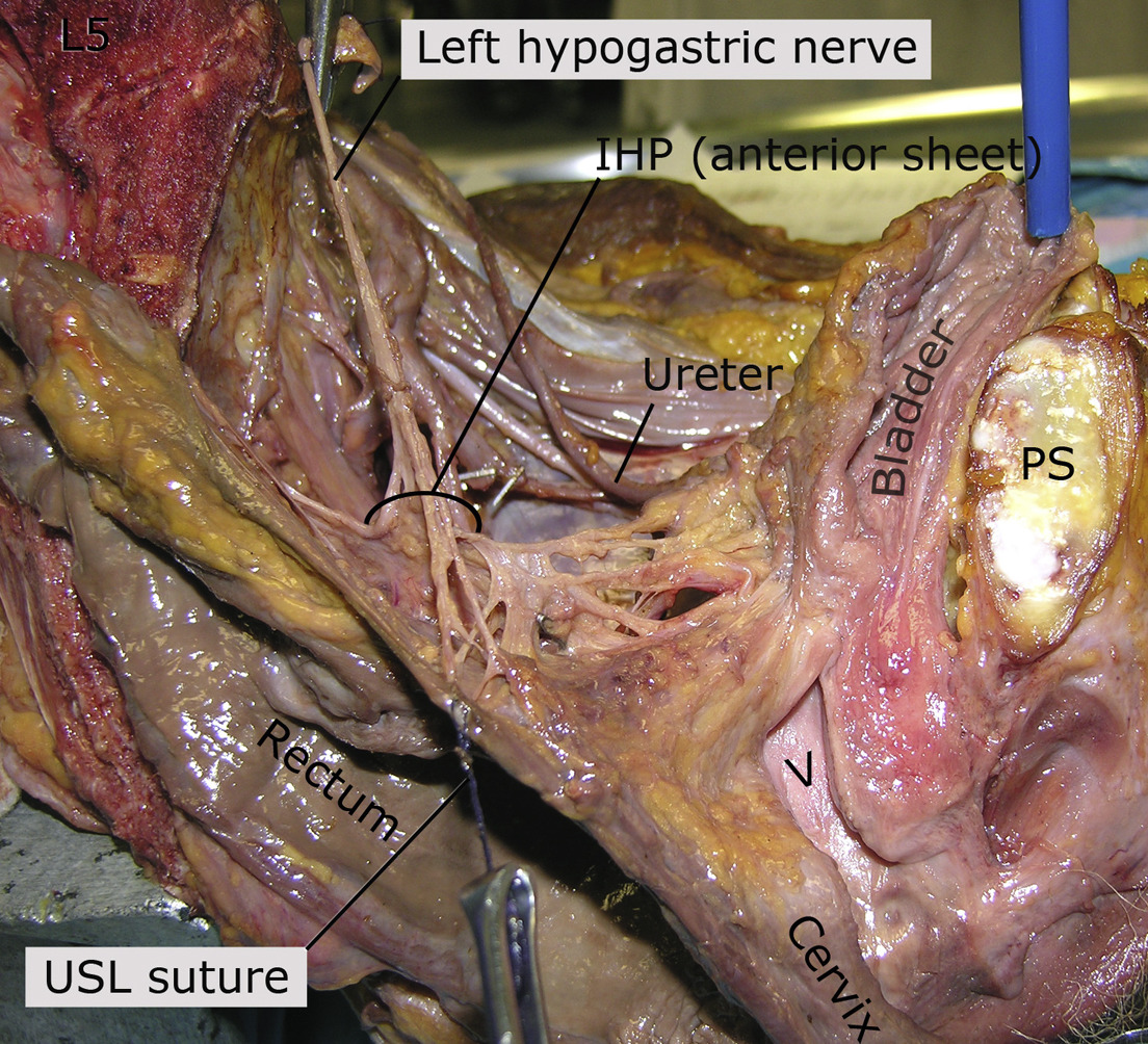 Anatomic Relationships Of The Pelvic Autonomic Nervous